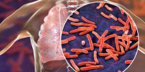 Global Tuberculosis Report 2020